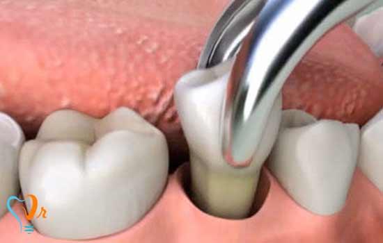 زمانی که دندانی باید کشیده شود
