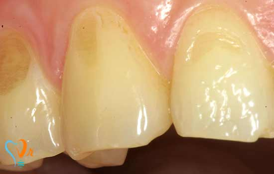 دندان سایش یافته
