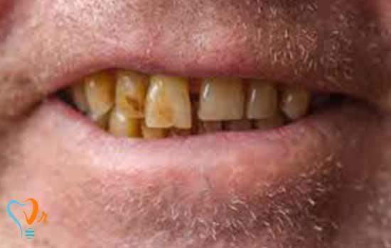 دندان های بدرنگ