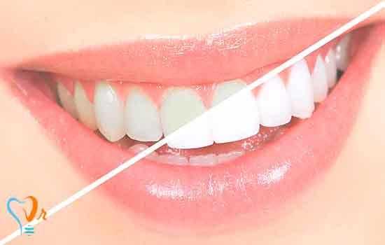 روکش دندان | روکش PFM | بریج دندان | پست دندان