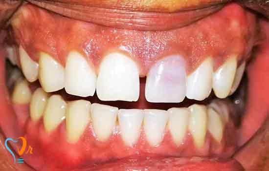 بلیچینگ دندان های غیر زنده (NonVital)