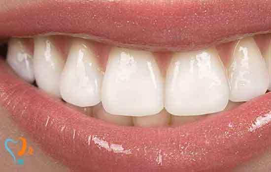 بیلیچینگ دندانهای زنده (Vital)