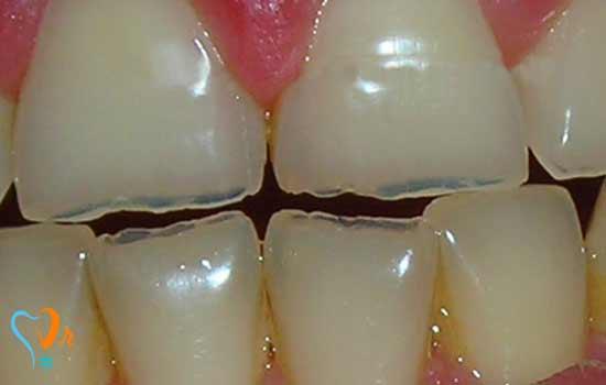 کاشت دندان در افرادی که دندان قروچه دارند
