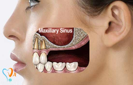 سینوس لیفت (Sinus Lift)