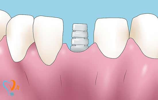 تحلیل استخوان دندان | درمان و جلوگیری از تحلیل استخوان