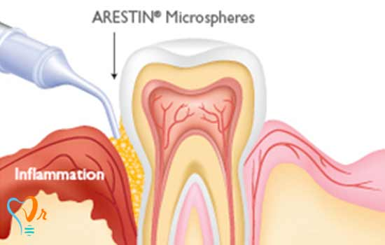 Arestin - آنتی بیوتیک ضد باکتری