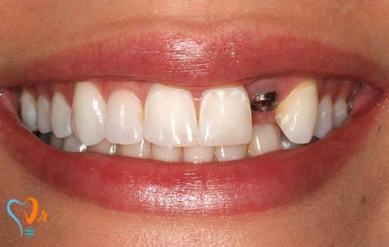 آیا می توان ایمپلنت دندان را بلافاصله پس از کشیدن دندان به کار برد؟