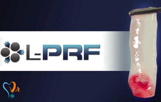 درمان با پی  آر پی  و آماده سازی پلاسمای غنی از پلاکت به چه صورتی انجام می شود؟