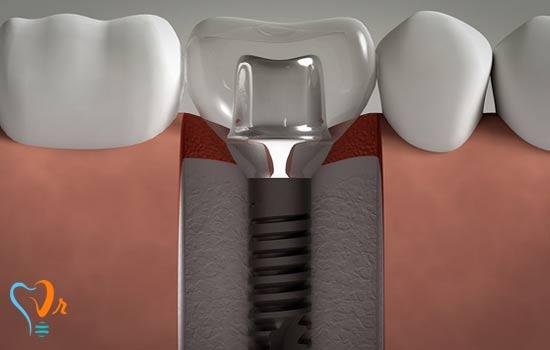 اباتمنت ایمپلنت دندان، آماده بهتر است یا سفارشی؟