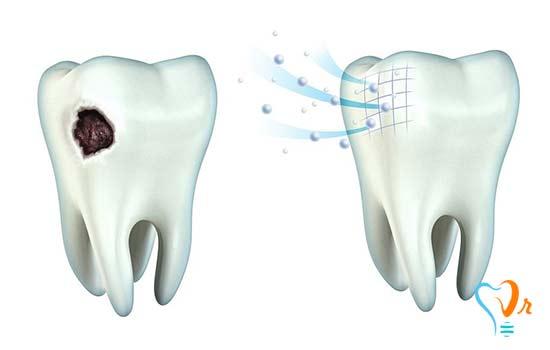 آیا پوسیدگی دندان قابل پیش بینی و پیشگیری است؟
