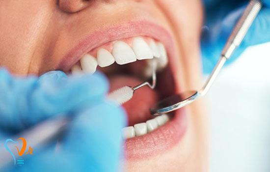 مواردی که باید در دندانپزشکی زیبایی در نظر گرفته شوند