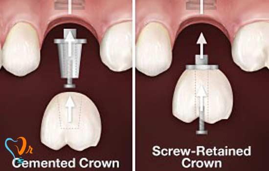 اتصال روکش دندان بر روی ایمپلنت