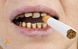 آیا پس از جراحی کاشت ایمپلنت دندان می توانم سیگار بکشم؟