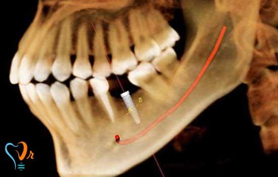 جا به جایی عصب در کاشت ایمپلنت دندان