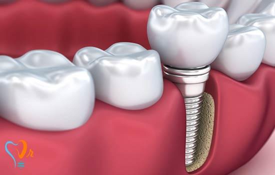 مزایای ایمپلنت دندان چیست؟