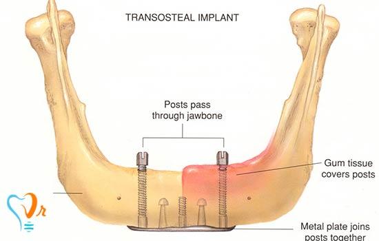 انواع ایمپلنت های دندانی و کاربرد آن ها چیست؟