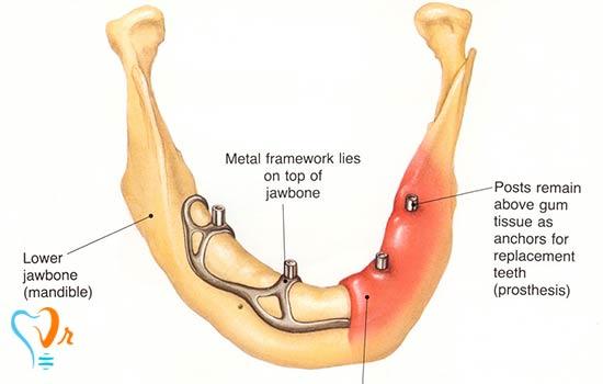 انواع ایمپلنت دندان چیست؟