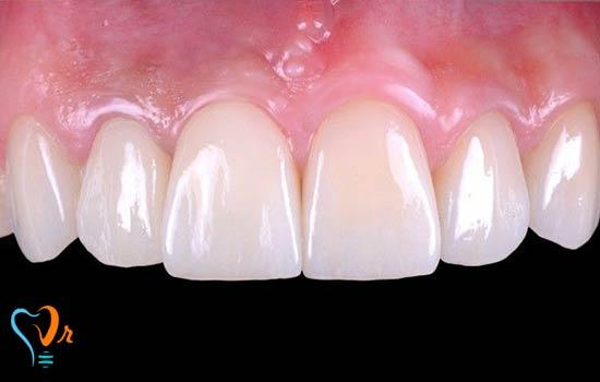 ایمپلنت فوری چیست؟ | قیمت کاشت دندان فوری