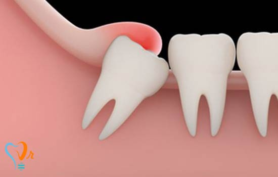 چرا دندان عقل باید کشیده شود؟