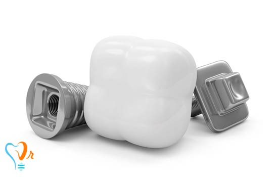 کاشت ایمپلنت دندان با لیزر