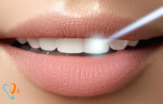 ایمپلنت دندانی که 100 سال عمر می کند!!!