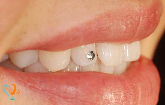 کاشت نگین دندانی
