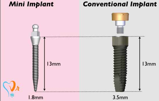 What is the difference between a mini implant and a dental implant?