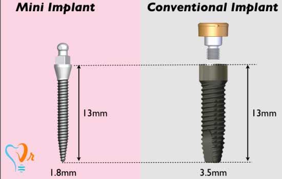 تفاوت بین مینی ایمپلنت و ایمپلنت دندان چیست؟