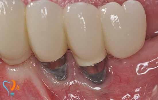 مشاکل مع زراعة الأسنان