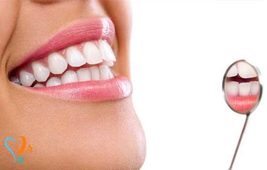 نحوه نگهداری ایمپلنت دندان