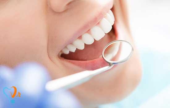 مطالبی خواندنی در رابطه با ایمپلنت دندان