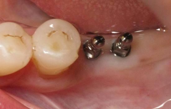 اتصال ایمپلنت ها به دندان طبیعی