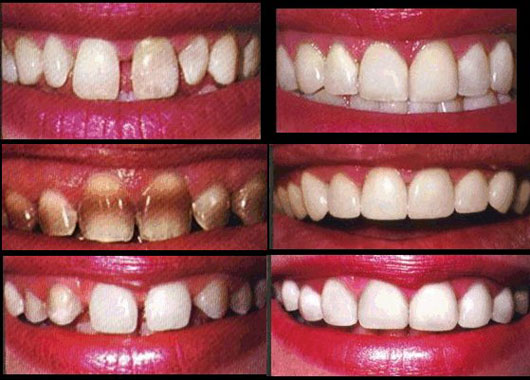 لمینت دندان |قیمت لمینت دندان