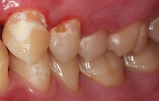 پوسيدگي دندان چيست و چگونه بوجود مي آيد؟