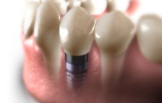 مزایای ایمپلنت های تک دندانی