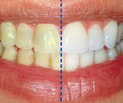 جرم گیری دندان و نکات مهم آن