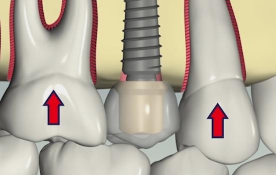 ایمپلنت دندان نیست(قسمت اول)