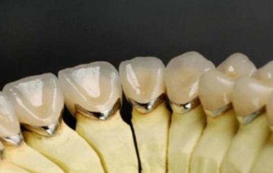 انواع روکش های دندانی PFM
