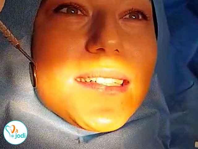 رضایت بیمار یک واحد  ایمپلنت دندان در مطب دکتر سجودی