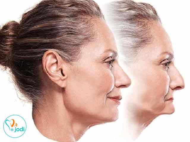 پیامدهای بی دندانی روی صورت (قسمت اول)