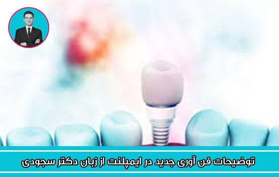 توضیحات فن آوری جدید در ایمپلنت از زبان دکتر سجودی
