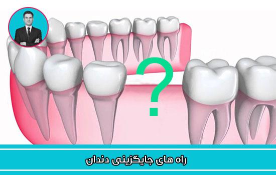 راه های جایگزینی دندان