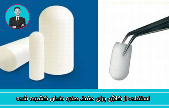 استفاده از کلاژن برای حفظ حفره دندان کشیده شده
