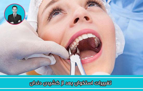 تغییرات استخوان بعد از کشیدن دندان