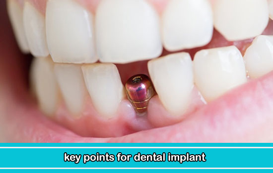 key points for dental implant