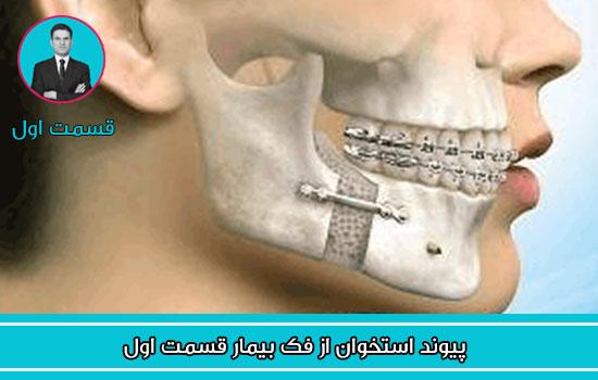پیوند استخوان از فک بیمار قسمت اول