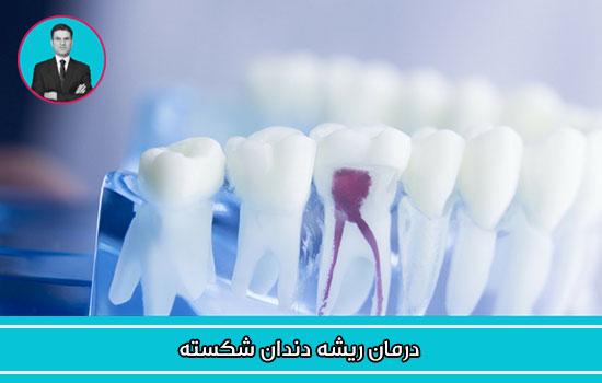 درمان ریشه دندان شکسته