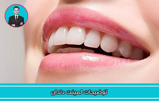 توضیحات لمینت دندان