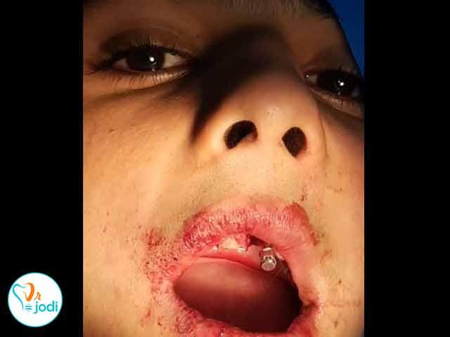 کشیدن ریشه دندان و  جایگذاری ایمپلنت
